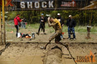 This is not me, but yes, I did Electroshock therapy and, yes, it hurts.